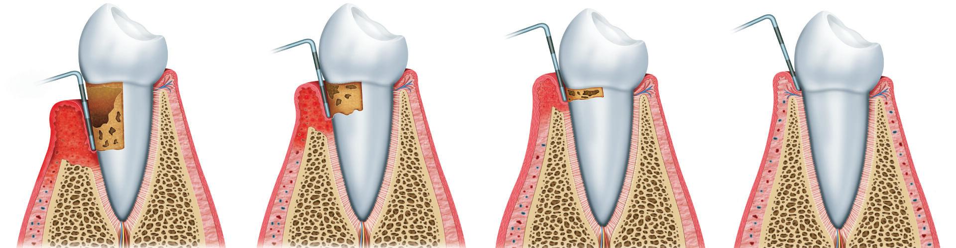 parodontitis behandeln